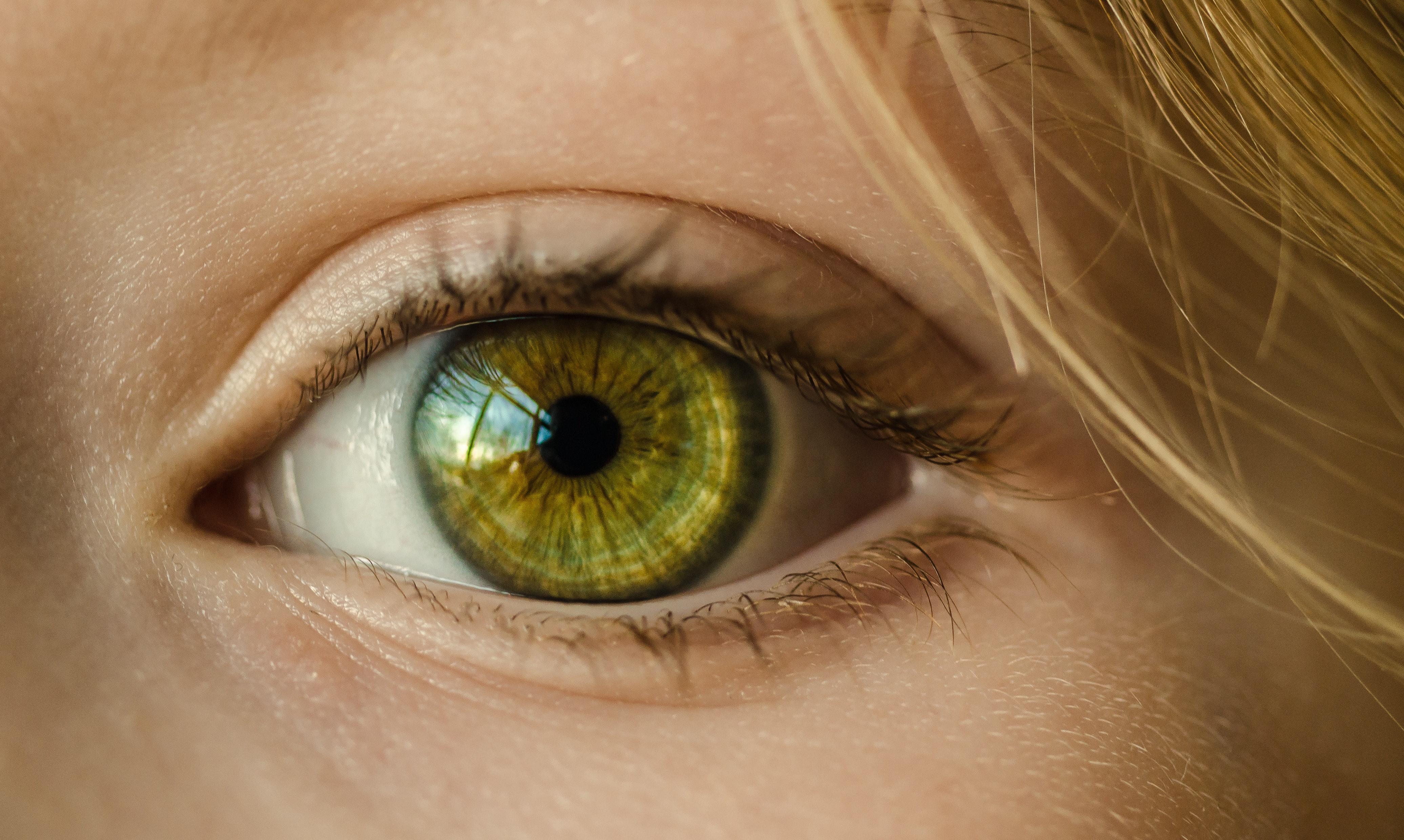 eye lash loss